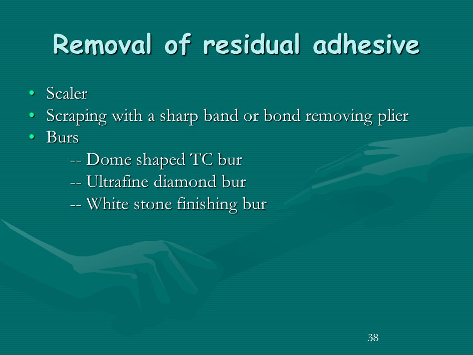 38 Removal of residual adhesive ScalerScaler Scraping with a sharp band or bond removing plierScraping with a sharp band or bond removing plier BursBurs -- Dome shaped TC bur -- Dome shaped TC bur -- Ultrafine diamond bur -- Ultrafine diamond bur -- White stone finishing bur -- White stone finishing bur