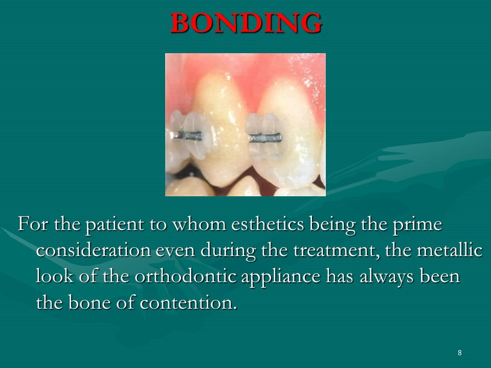 BONDING For the patient to whom esthetics being the prime consideration even during the treatment, the metallic look of the orthodontic appliance has always been the bone of contention.