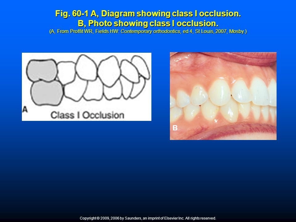 Fig. 60-1 A, Diagram showing class I occlusion. B, Photo showing class I occlusion. (A, From Proffit WR, Fields HW: Contemporary orthodontics, ed 4, S