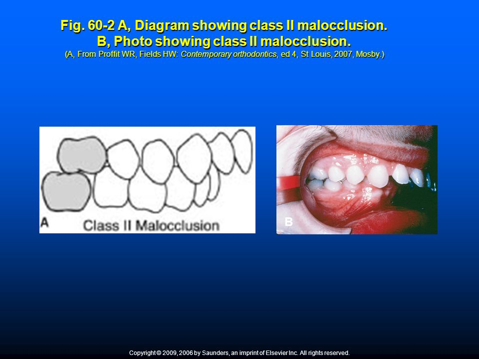 Fig. 60-2 A, Diagram showing class II malocclusion. B, Photo showing class II malocclusion. (A, From Proffit WR, Fields HW: Contemporary orthodontics,