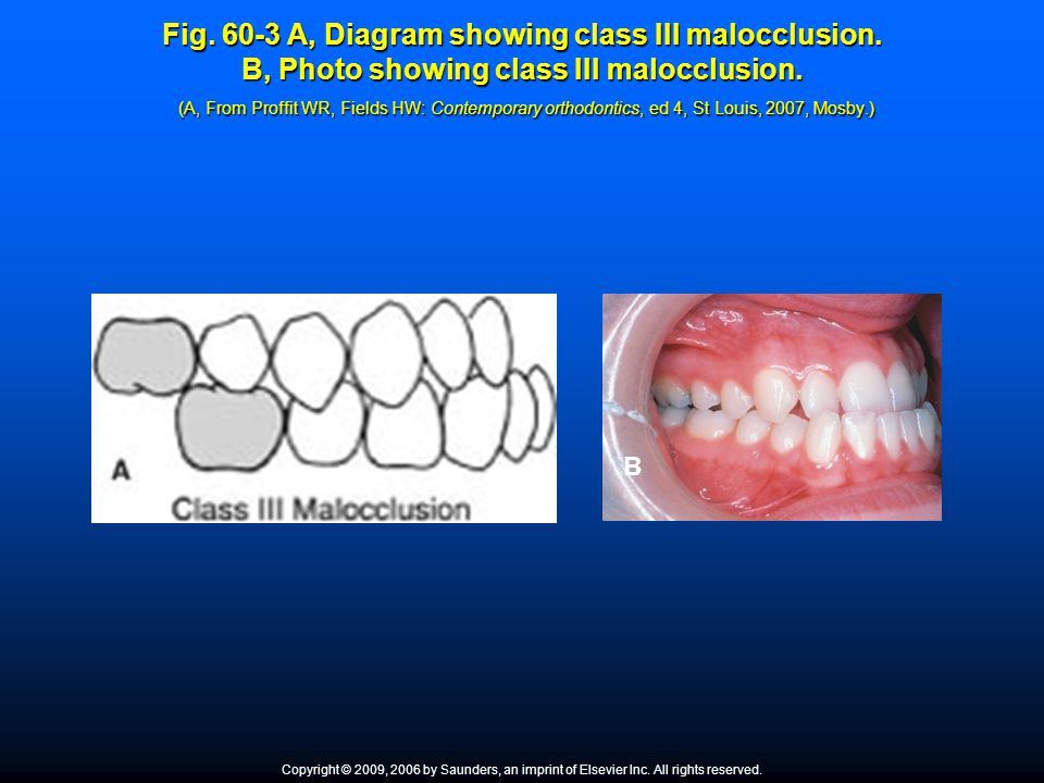 Fig. 60-3 A, Diagram showing class III malocclusion. B, Photo showing class III malocclusion. (A, From Proffit WR, Fields HW: Contemporary orthodontic