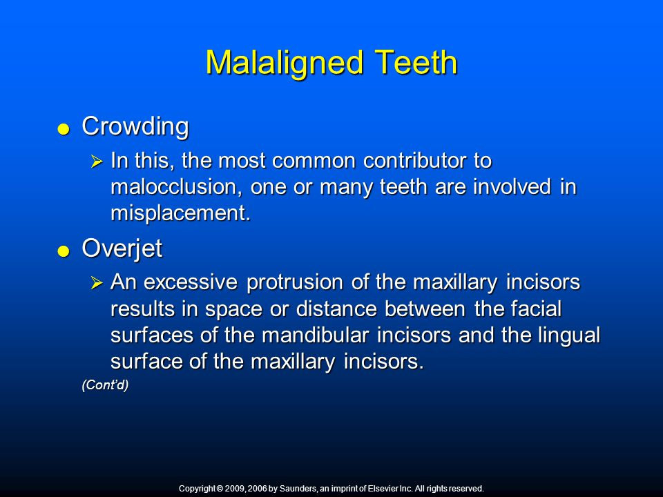 Malaligned Teeth  Crowding  In this, the most common contributor to malocclusion, one or many teeth are involved in misplacement.  Overjet  An exc