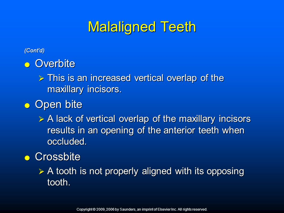Malaligned Teeth (Cont'd)  Overbite  This is an increased vertical overlap of the maxillary incisors.  Open bite  A lack of vertical overlap of th