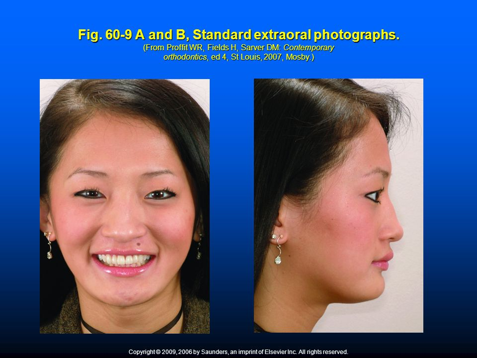 Fig. 60-9 A and B, Standard extraoral photographs. (From Proffit WR, Fields H, Sarver DM: Contemporary orthodontics, ed 4, St Louis, 2007, Mosby.) Cop