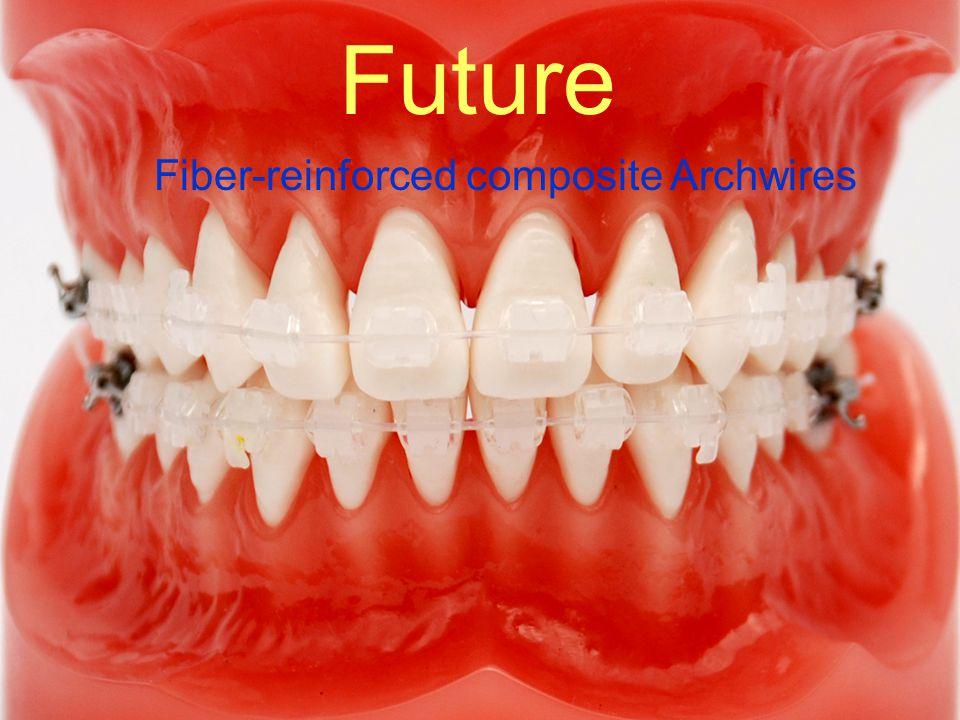 Future Future Fiber-reinforced composite Archwires