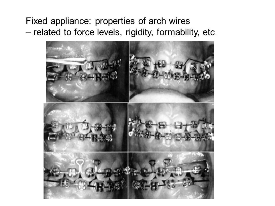 Fixed appliance: properties of arch wires – related to force levels, rigidity, formability, etc.
