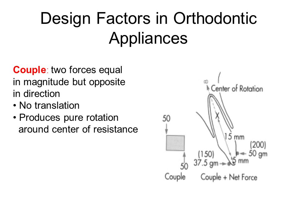 Design Factors in Orthodontic Appliances Couple : two forces equal in magnitude but opposite in direction No translation Produces pure rotation around