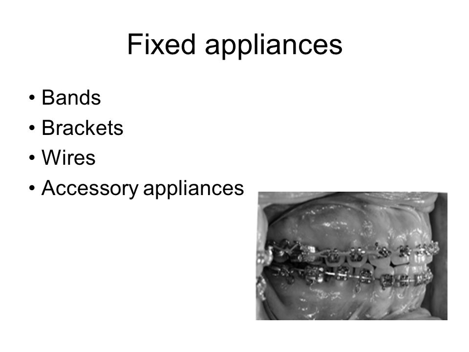 Fixed appliances Bands Brackets Wires Accessory appliances