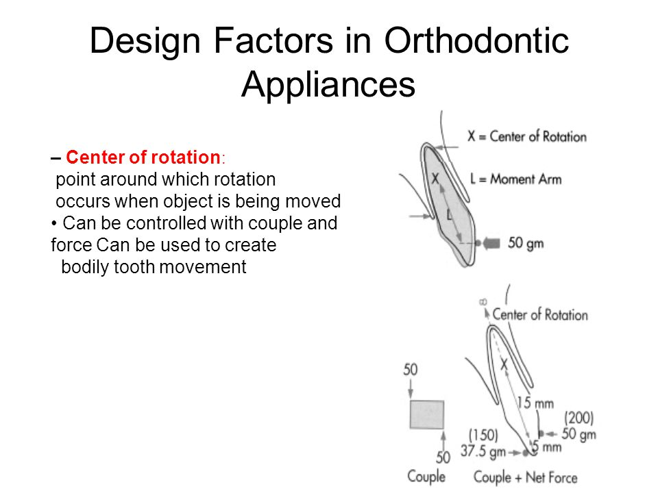 Design Factors in Orthodontic Appliances – Center of rotation : point around which rotation occurs when object is being moved Can be controlled with c