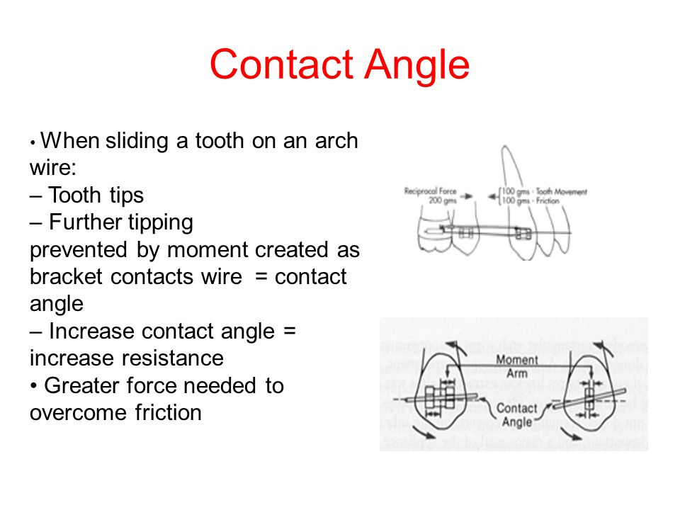Contact Angle When sliding a tooth on an arch wire: – Tooth tips – Further tipping prevented by moment created as bracket contacts wire = contact angl