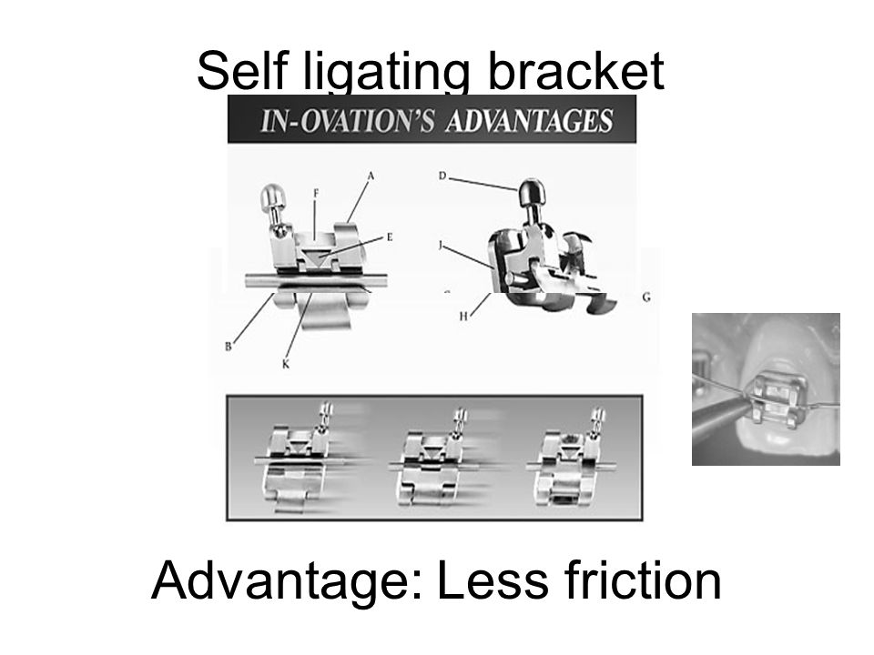 Self ligating bracket Advantage: Less friction