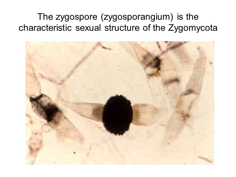 The zygospore (zygosporangium) is the characteristic sexual structure of the Zygomycota