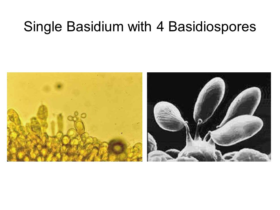 Single Basidium with 4 Basidiospores