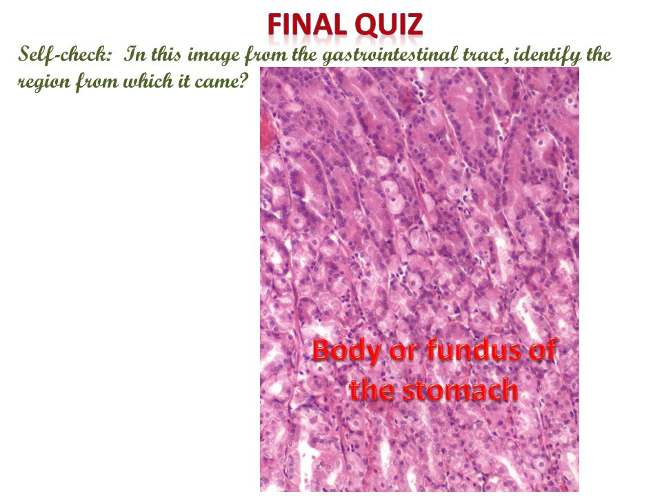 Self-check: In this image from the gastrointestinal tract, identify the region from which it came