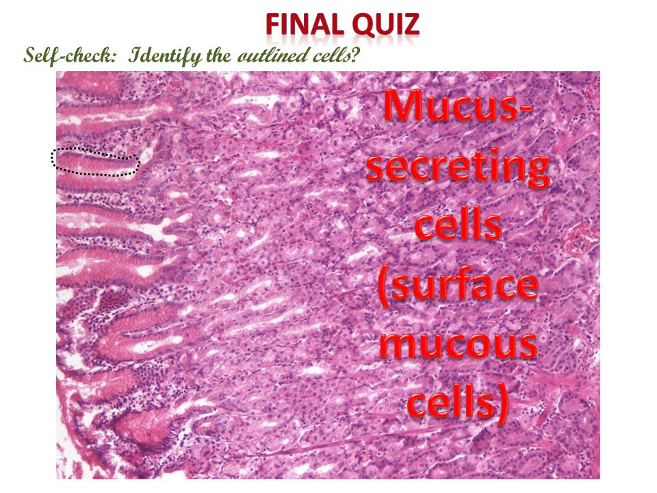 Self-check: Identify the outlined cells