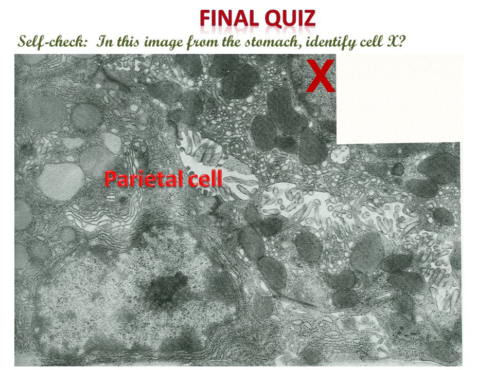 Self-check: In this image from the stomach, identify cell X X