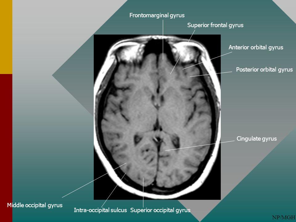 NP/MGH Superior frontal gyrus Anterior orbital gyrus Posterior orbital gyrus Frontomarginal gyrus Cingulate gyrus Superior occipital gyrusIntra-occipi