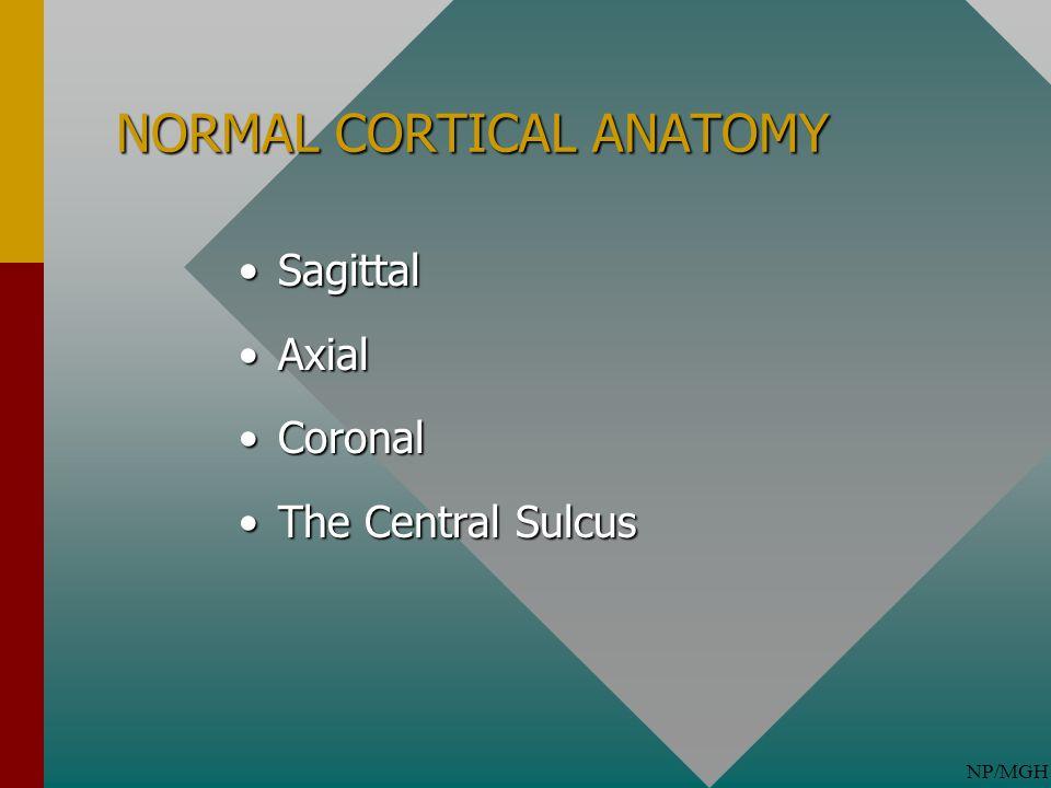 NP/MGH NORMAL CORTICAL ANATOMY SagittalSagittal AxialAxial CoronalCoronal The Central SulcusThe Central Sulcus