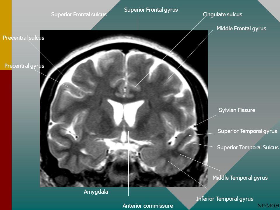NP/MGH Superior Frontal gyrus Superior Frontal sulcus Middle Frontal gyrus Superior Temporal Sulcus Sylvian Fissure Amygdala Precentral sulcus Anterio