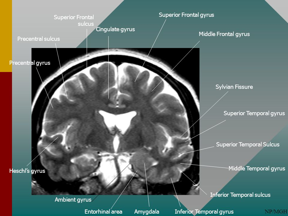 NP/MGH Superior Frontal gyrus Middle Frontal gyrus Superior Temporal gyrus Middle Temporal gyrus Superior Temporal Sulcus Sylvian Fissure Heschl's gyr