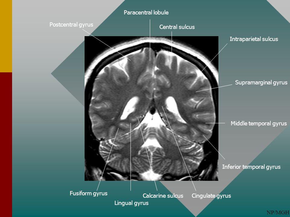 NP/MGH Fusiform gyrus Lingual gyrus Calcarine sulcusCingulate gyrus Inferior temporal gyrus Middle temporal gyrus Supramarginal gyrus Intraparietal su