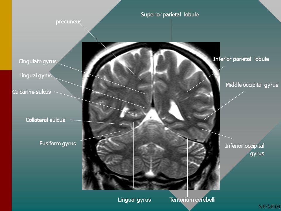 NP/MGH Lingual gyrus Calcarine sulcus Superior parietal lobule precuneus Cingulate gyrus Tentorium cerebelli Fusiform gyrus Inferior parietal lobule M
