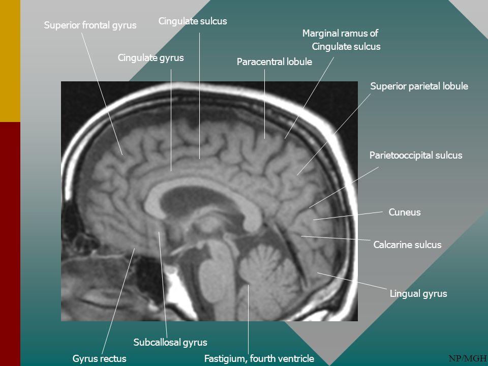 NP/MGH Subcallosal gyrus Gyrus rectus Parietooccipital sulcus Fastigium, fourth ventricle Cingulate gyrus Calcarine sulcus Marginal ramus of Cingulate