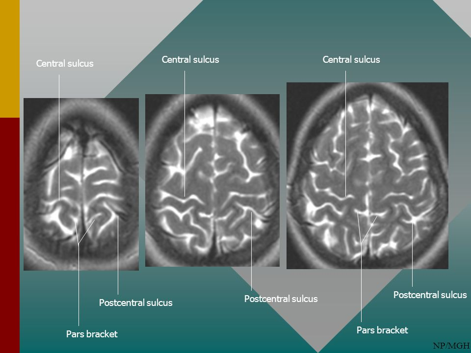 NP/MGH Central sulcus Postcentral sulcus Central sulcus Postcentral sulcus Pars bracket