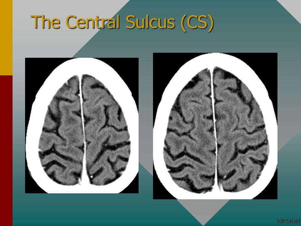 NP/MGH The Central Sulcus (CS)