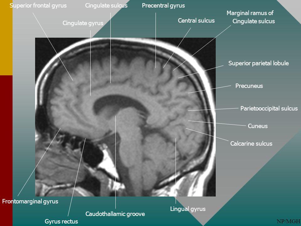 NP/MGH Gyrus rectus Parietooccipital sulcus Cingulate gyrus Calcarine sulcus Lingual gyrus Marginal ramus of Cingulate sulcus Superior parietal lobule