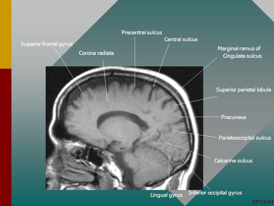 NP/MGH Parietooccipital sulcus Calcarine sulcus Superior parietal lobule Marginal ramus of Cingulate sulcus Central sulcus Precentral sulcus Precuneus