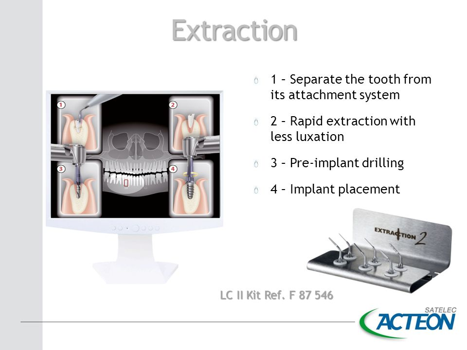 Extraction 1 – Separate the tooth from its attachment system 2 – Rapid extraction with less luxation 3 – Pre-implant drilling 4 – Implant placement LC