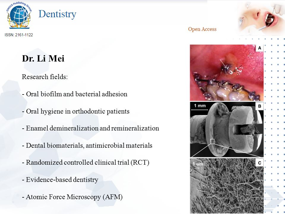 Dr. Li Mei Research fields: - Oral biofilm and bacterial adhesion - Oral hygiene in orthodontic patients - Enamel demineralization and remineralizatio