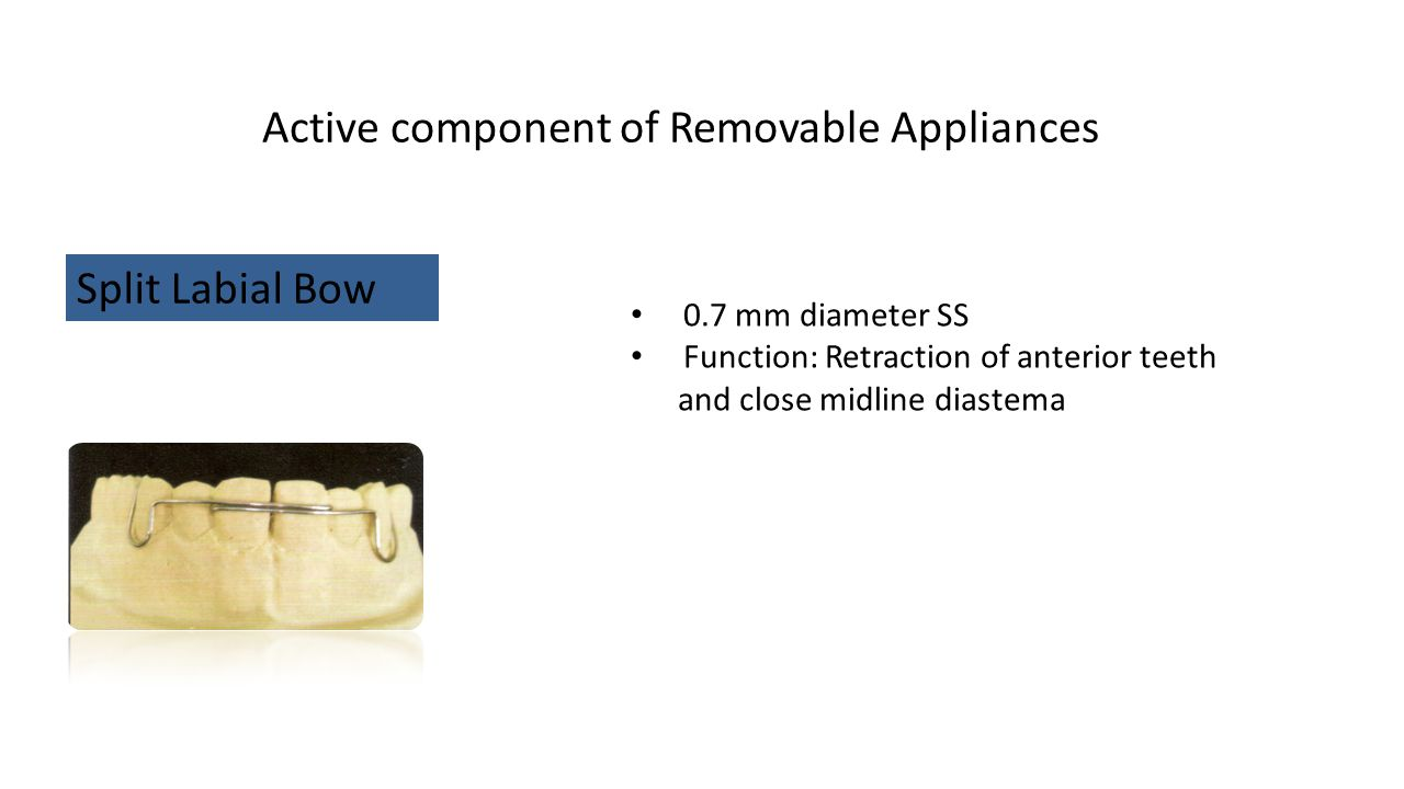 Active component of Removable Appliances Split Labial Bow 0.7 mm diameter SS Function: Retraction of anterior teeth and close midline diastema