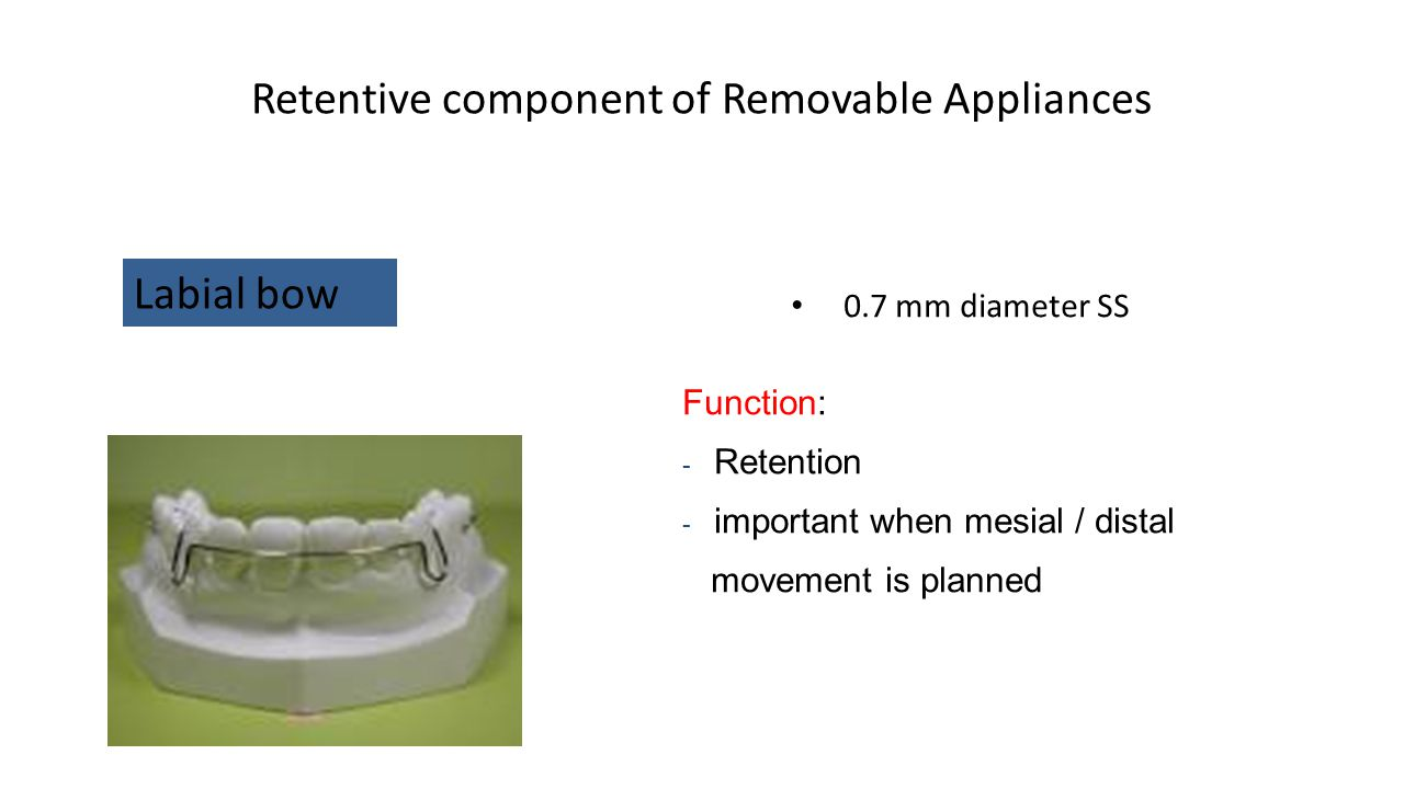 Retentive component of Removable Appliances 0.7 mm diameter SS Labial bow Function: - Retention - important when mesial / distal movement is planned