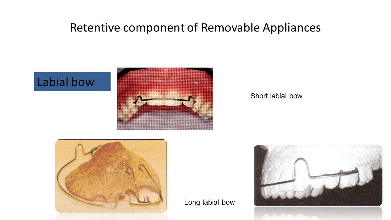 Retentive component of Removable Appliances Labial bow Short labial bow Long labial bow