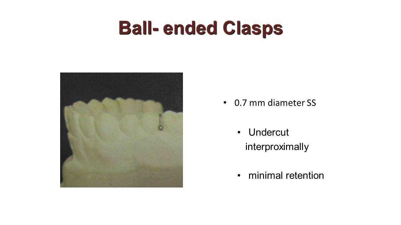 Ball- ended Clasps Undercut interproximally minimal retention 0.7 mm diameter SS