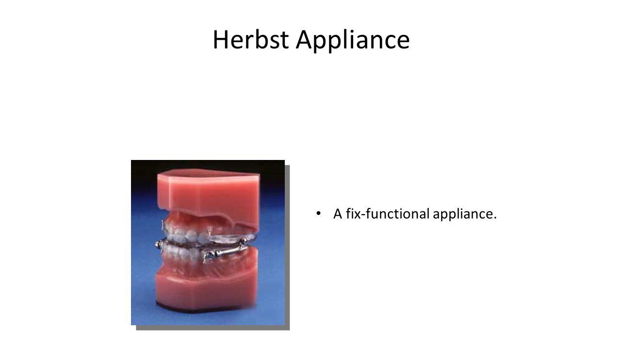 Herbst Appliance A fix-functional appliance.