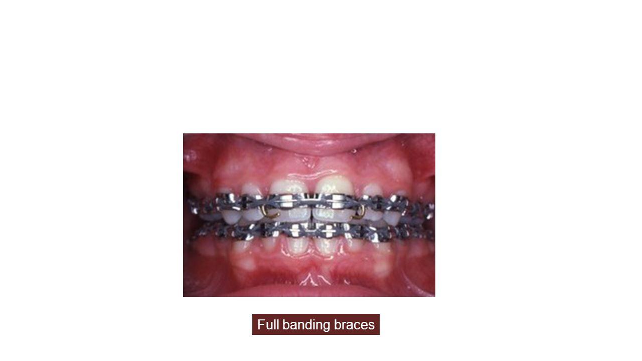 Full banding braces