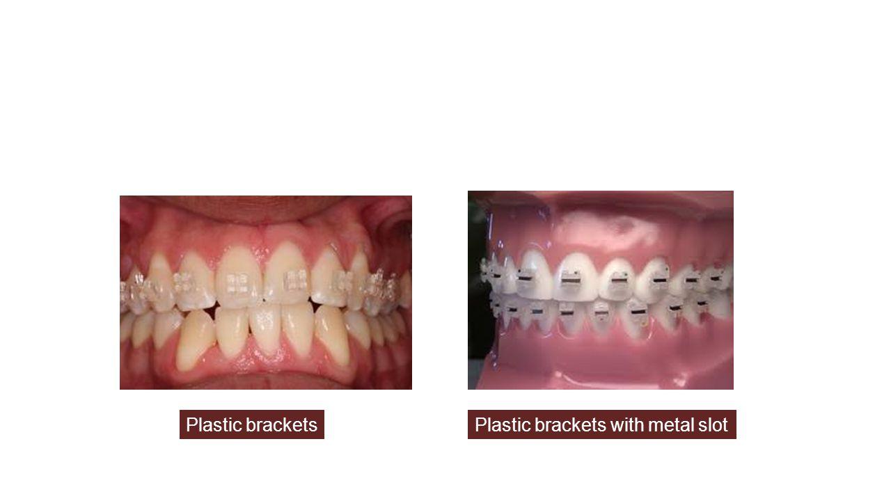 Plastic bracketsPlastic brackets with metal slot
