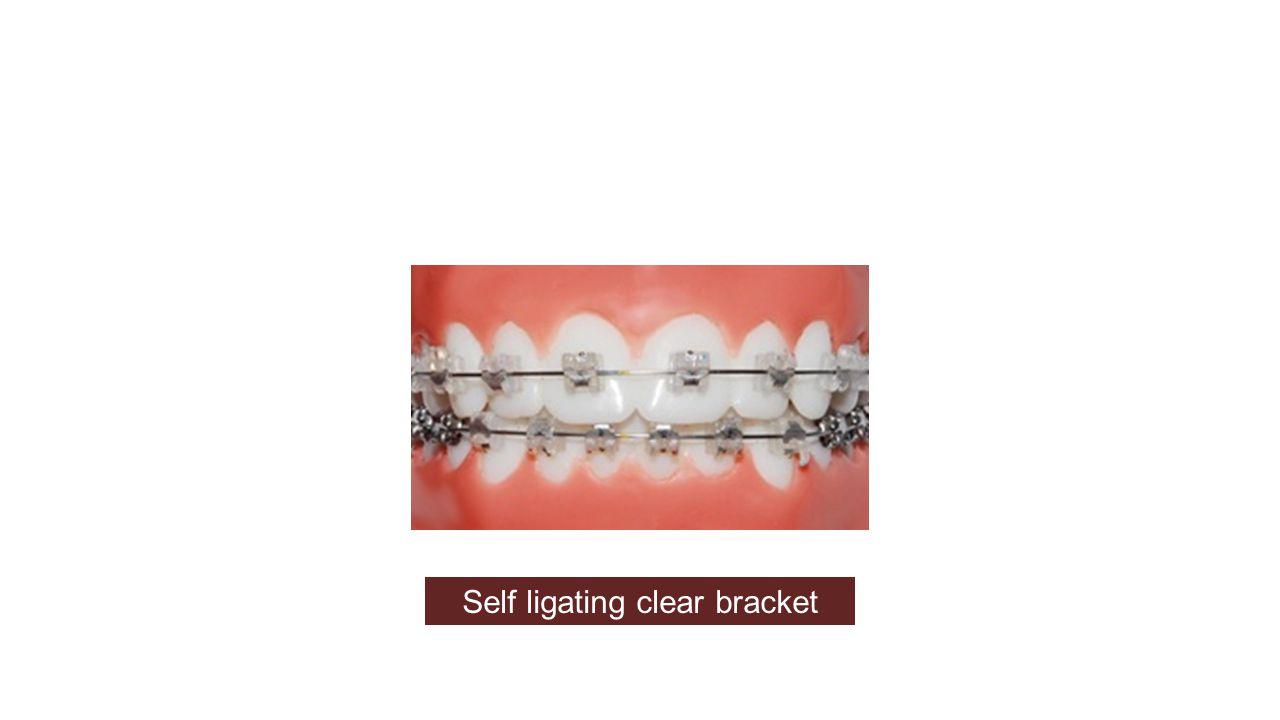 Self ligating clear bracket