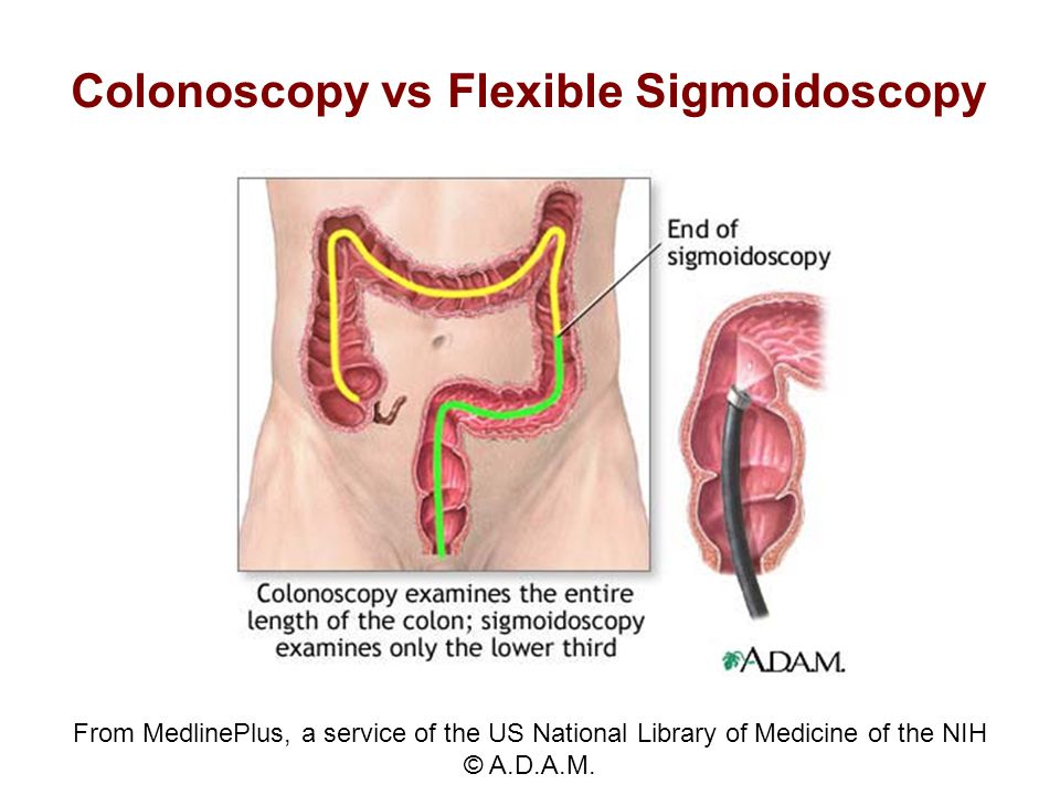 Colonoscopy vs Flexible Sigmoidoscopy From MedlinePlus, a service of the US National Library of Medicine of the NIH © A.D.A.M.