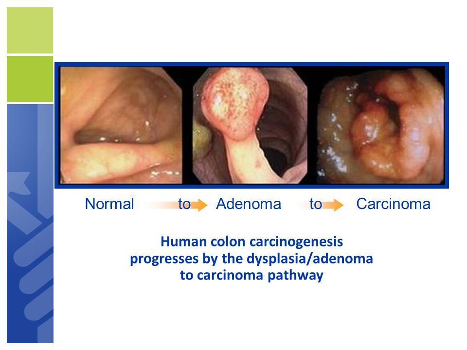 Normal toAdenomatoCarcinoma Human colon carcinogenesis progresses by the dysplasia/adenoma to carcinoma pathway