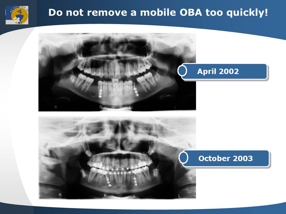 Your site here LOGO Do not remove a mobile OBA too quickly! April 2002 October 2003