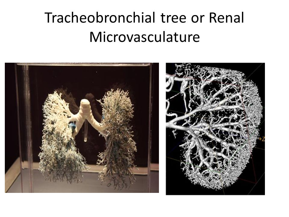 Tracheobronchial tree or Renal Microvasculature