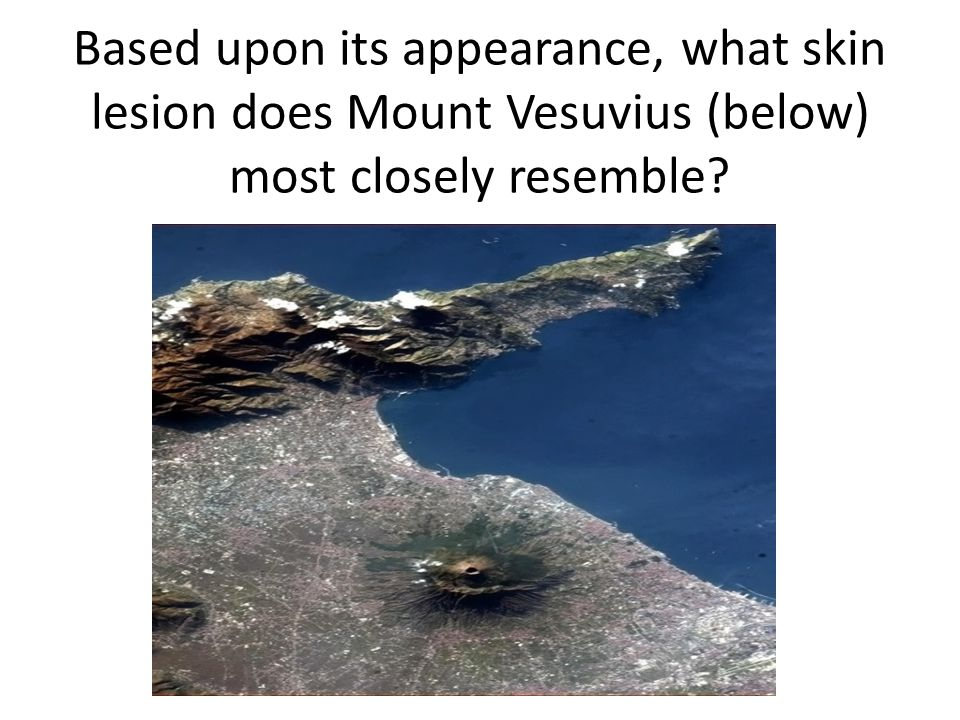 Based upon its appearance, what skin lesion does Mount Vesuvius (below) most closely resemble