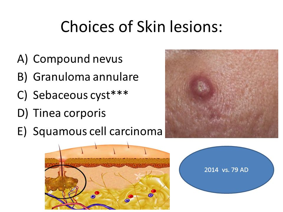 Choices of Skin lesions: A)Compound nevus B)Granuloma annulare C)Sebaceous cyst*** D)Tinea corporis E)Squamous cell carcinoma of the skin 2014 vs.