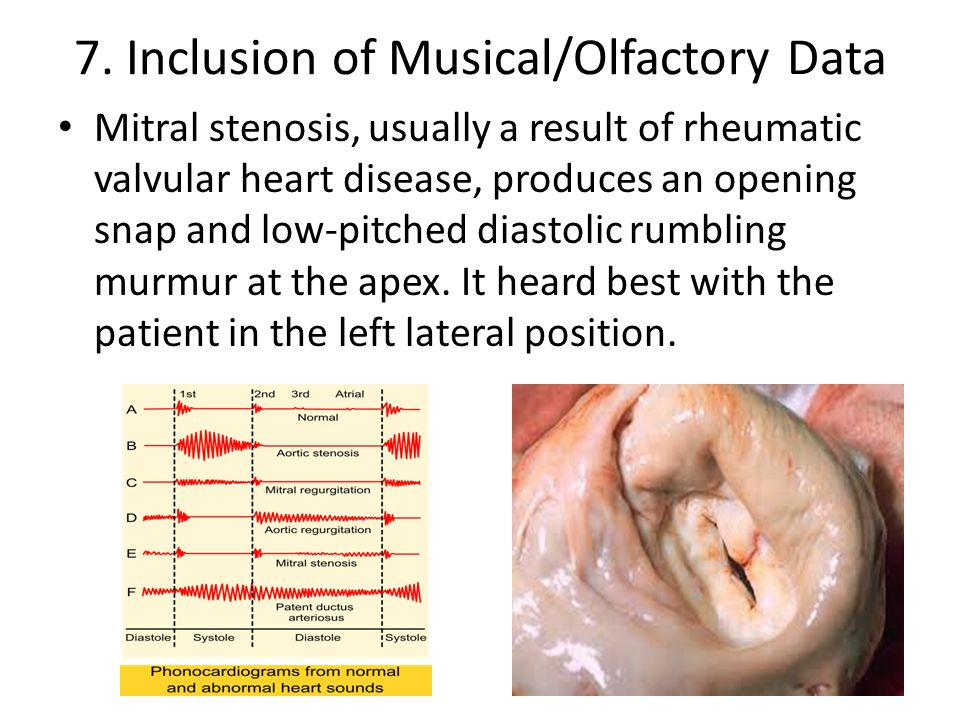 7. Inclusion of Musical/Olfactory Data Mitral stenosis, usually a result of rheumatic valvular heart disease, produces an opening snap and low-pitched