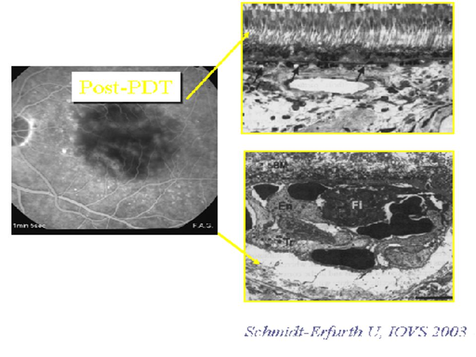 To the current state of the art, there isn't a gold standard therapy for chronic central serous chorio-retinopathy.