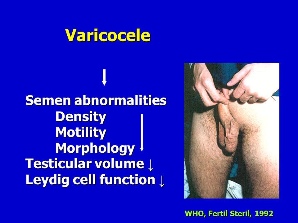 Varicocele Semen abnormalities Density Motility Morphology Testicular volume ↓ Leydig cell function ↓ WHO, Fertil Steril, 1992